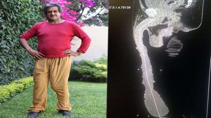 Man With World's Longest Penis Exposed As A Fake By Doc Who Says It's Just Six Inches Long